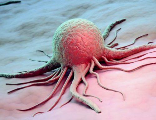 ¿Cuáles son los cinco tipos de cáncer más mortales?